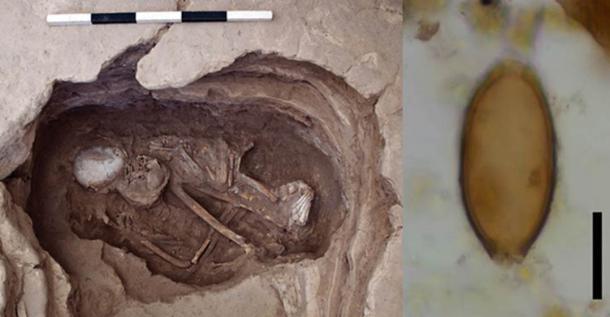 Esqueleto 30928, posible mujer, con edades entre 35 y 50 años, que data del 6700–6500 a.C (Proyecto de investigación Çatalhöyük) Huevo microscópico de látigo de Çatalhöyük, Turquía. La barra de escala negra representa 20 micrómetros. (Evilena Anastasiou)