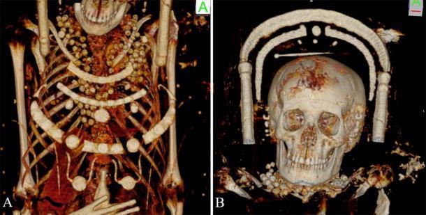 Las momias femeninas llevaban hermosos collares. Un volumen reconstruido que muestra los detalles de la momia del retrato femenino joven con cuentas alrededor del cuello, la región torácica y una horquilla en la parte superior de su cabeza. (Zesch S, et al. PLOS One / CC BY 4.0)