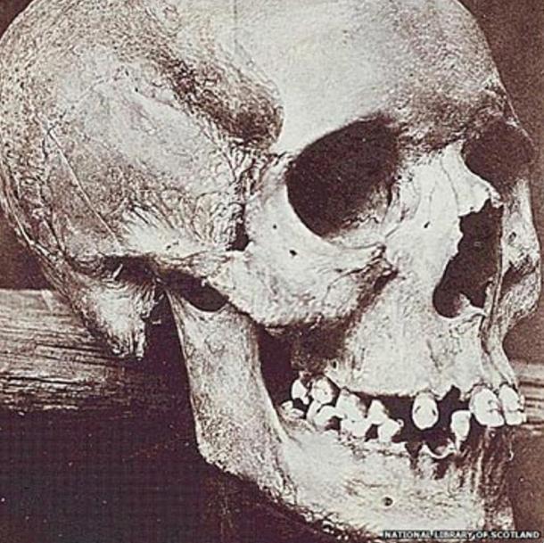 foto-esqueleto-de-Lilias-Adie.jpg