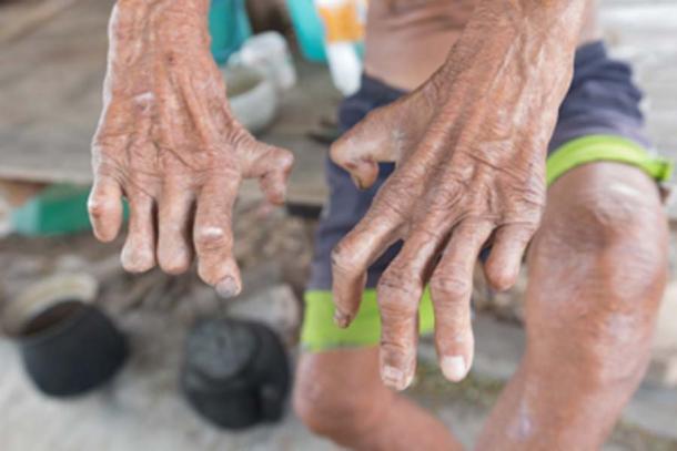 La enfermedad de Hansen, primer plano de las manos del anciano que sufre de lepra. (frank29052515 / Adobe Stock)