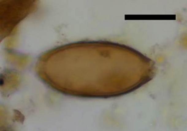 Huevo microscópico de látigo de Çatalhöyük, Turquía. La barra de escala negra representa 20 micrómetros. (Evilena Anastasiou)