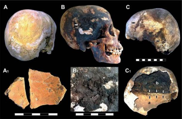 Incrustaciones minerales rojas y negras detectadas en los cráneos de las víctimas del Vesubio. (Imagen: © 2018 Pierpaolo Petrone et al)
