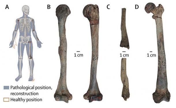 Los paleontólogos que analizan los restos de un hombre del Neolítico desenterrado en Maliq, Albania, han descubierto que padecía una enfermedad conocida como osteopetrosis, también conocida como enfermedad de los huesos de piedra. (Gresky et al. / The Lancet Diabetes and Endocrinology)