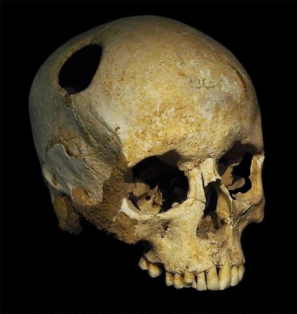 El perímetro del agujero de trepanación en este cráneo neolítico se completa con el crecimiento de tejido óseo nuevo, lo que indica que el paciente sobrevivió a la operación. Este cráneo fue descubierto en Corseaux, Suiza. (Rama / CC BY-SA 3.0 FR)
