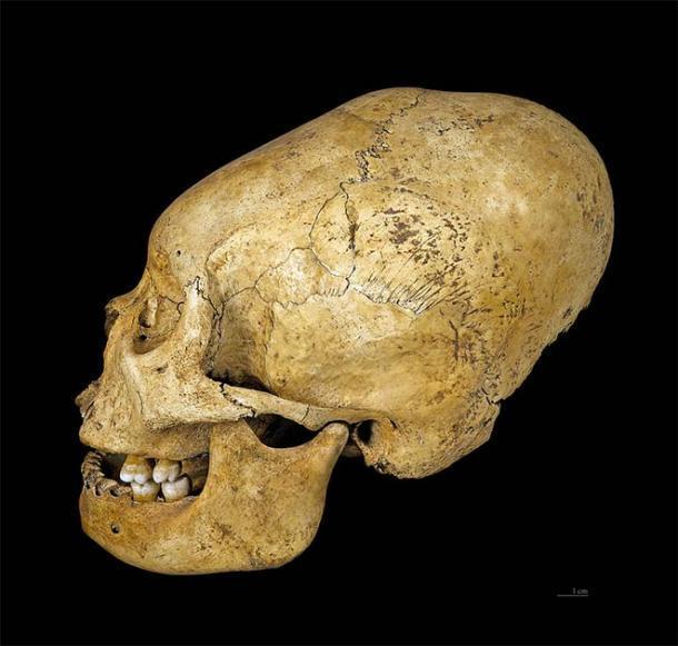 Cráneo deformado de Proto Nazca, c 200–100 a. C. (CC BY-SA 4.0)