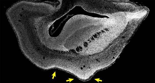 Imagen microscópica de una sección a través de un hemisferio cerebral de un feto tití transgénico ARHGAP11B de 101 días de edad. Los núcleos celulares se visualizan mediante DAPI (blanco). Las flechas señalan un nuevo pliegue en el cerebro del mono. (Heide y col. / MPI-CBG)