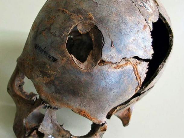 Uno de los cráneos encontrados en el sitio de masacre más antiguo de Europa en Alemania. Observe cómo se rompió el cráneo, probablemente con un mazo de madera mortal. (Oficina Estatal de Cultura y Preservación de Meckleburg-Vorpommern)