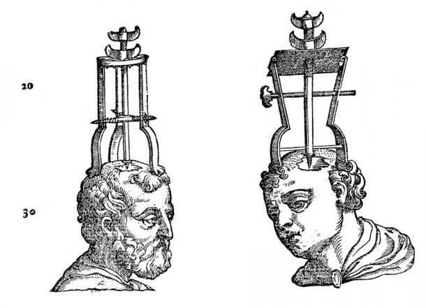 Dos cabezas con instrumentos de trefinado en posición. (Imágenes de bienvenida / CC BY 4.0)