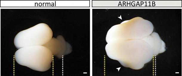 Cerebros de tití de tipo salvaje (normal) y transgénico ARHGAP11B (101 días). Líneas amarillas, límites de la corteza cerebral; líneas blancas, cerebelo en desarrollo; puntas de flecha, pliegues. Barras de escala, 1 mm. (Heide y col. / MPI-CBG)