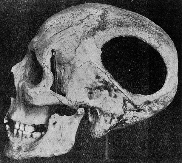 Cráneo con evidencia de trepanación de la cueva de Nogent-les-vierges, Francia, período neolítico. (Imágenes de bienvenida / CC BY 4.0)