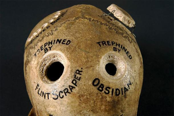 Cráneo humano que ilustra diferentes métodos de trepanación. ((Wellcome Images / CC BY 4.0 )