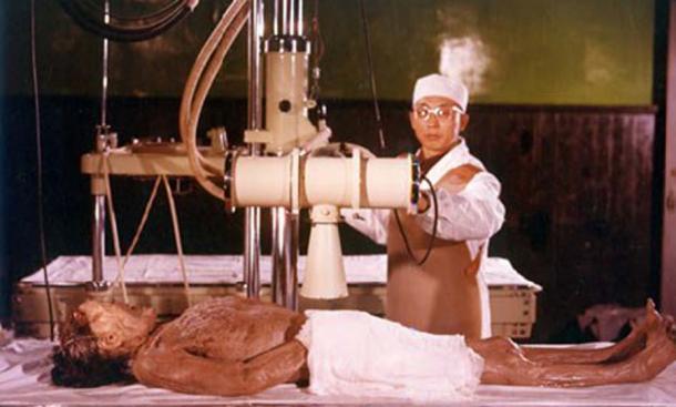 La Dama de Dai sometida a examen. Crédito de la foto: Museo Provincial de Hunan