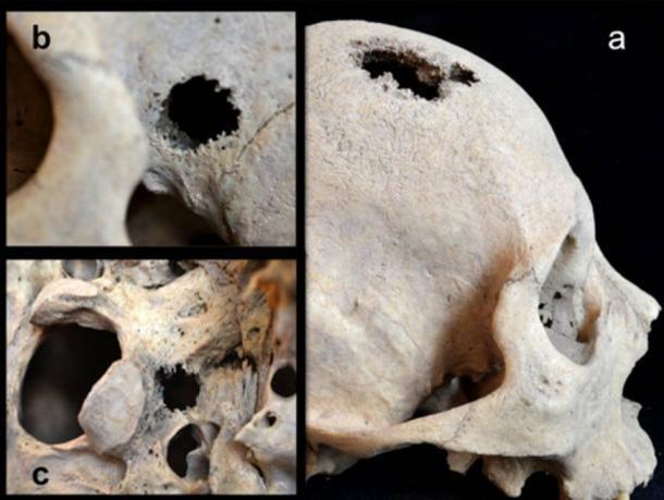 Las lesiones y los agujeros en el cráneo del hombre siberiano sugieren que las personas sufrieron cáncer en el período de la Edad del Bronce Temprano. Crédito: Angela R. Lieverse et al.