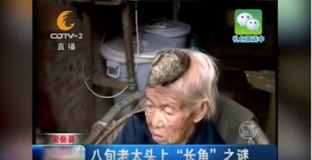 Liang Xiuzhen, de 87 años, de Sichuan, China, tenía un CUERNO de cinco pulgadas saliendo de su cabeza. (Captura de pantalla de Youtube)