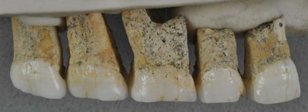 Los cinco dientes superiores encontrados pertenecían a un solo individuo de homínido previamente desconocido, denominado provisionalmente 'Homo luzonensis'. Tienen una extraña mezcla de Australopithecine y características modernas. (Imagen: © Callao Cave Archaeology Project)