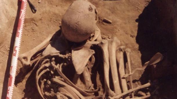 Los huesos de un hombre siberiano de 4.500 años de edad revelan que murió de cáncer. Los investigadores han descubierto cuál puede ser el caso más antiguo de cáncer humano en el mundo. Crédito: Angela R. Lieverse et al.