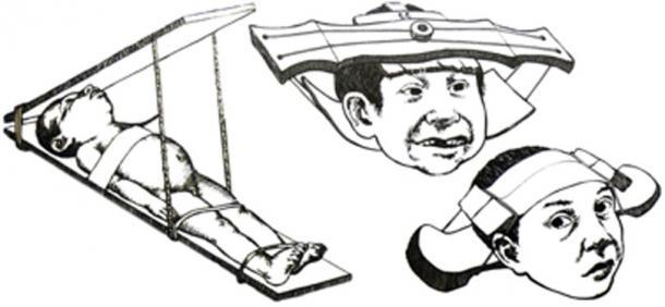 Métodos que se utilizaron en niños para la deformación craneal intencional. (OgreBot / Dominio Público)
