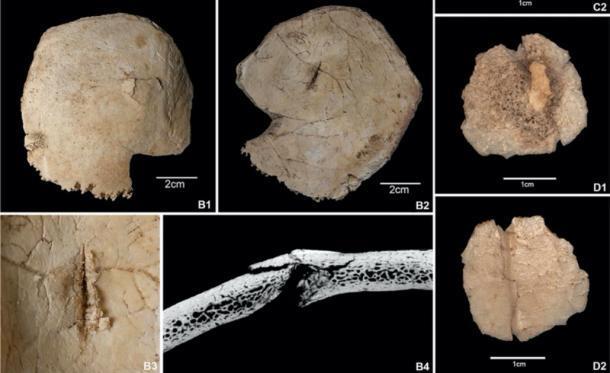 Más imágenes de los esqueletos encontrados en la cueva en los Pirineos españoles, mostrando daños por objetos contundentes / flechas durante la masacre. (T. Schuerch / G. Schulz / Scientific Reports)