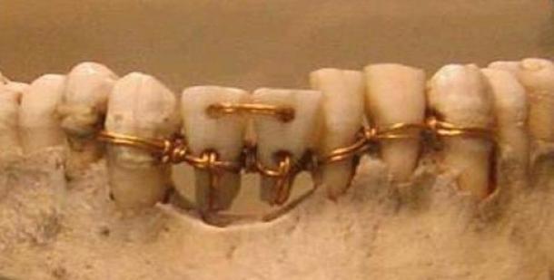 Increíble trabajo dental encontrado en una momia de 4.000 años. Los dos dientes centrales son dientes donantes.