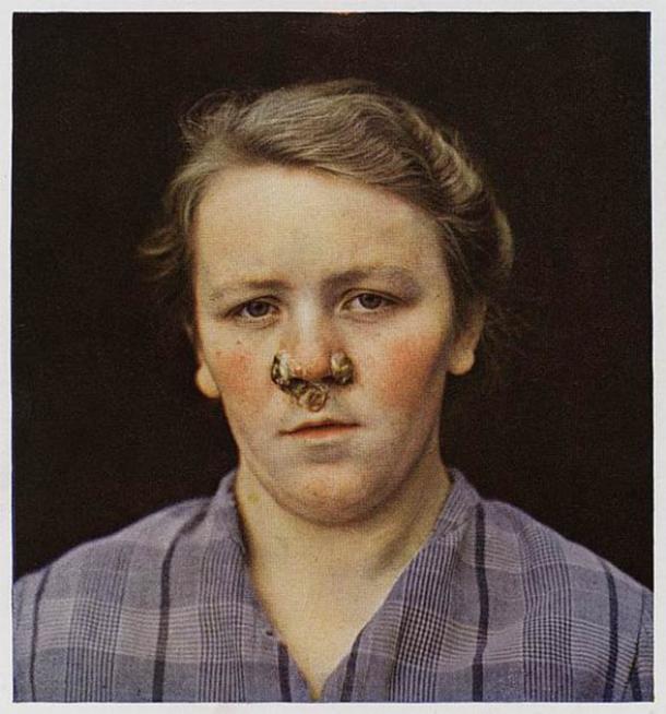 Una fotografía de una niña que sufre de sífilis secundaria en la cara con grandes pápulas alrededor de la nariz. (CC BY 4.0)