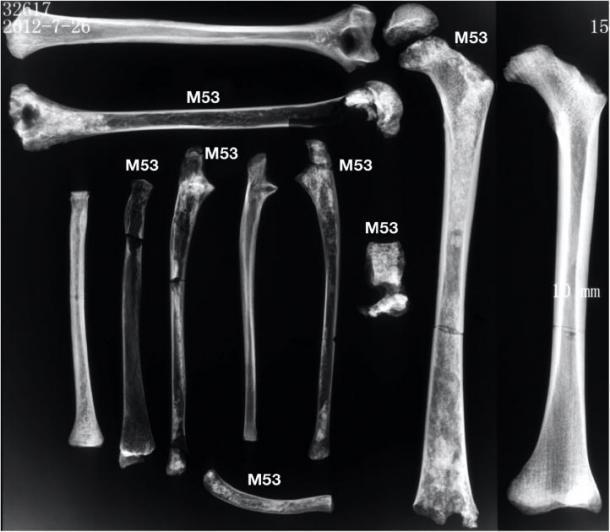Las radiografías de los huesos largos muestran osteopenia en comparación con un individuo arqueológico comparativo de 12 años con hueso no patológico. (Imagen: CC BY 4.0)