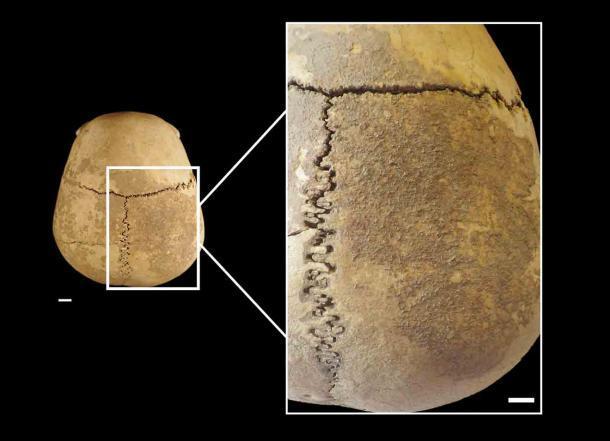 Los científicos han realizado un análisis en profundidad de la cabeza cortada descubierta en una cueva en Italia para comprender más sobre su historia única. (Belcastro et al. - PLOS ONE / CC-BY 4.0)