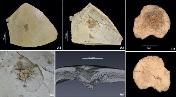 Parte de los esqueletos dañados por objetos romos / flechas durante la masacre, que se encontraron en los Pirineos españoles. (T. Schuerch / G. Schulz / Scientific Reports)