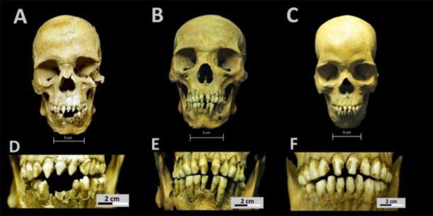 Cráneos y patrones de decoración dental para las tres personas africanas del Hospital Real San José de los Naturales. A. Cráneo del individuo 150 (SJN001). B. Cráneo del individuo 214 (SJN002). C. Cráneo del individuo 296 (SJN003). D. Primer plano de los patrones de modificación dental para el individuo 150 (SJN001). E. Primer plano de los patrones de modificación dental para el individuo 214 (SJN002). F. Primer plano de los patrones de modificación dental para el individuo 296 (SJN003). (Imagen: Colección de San José de los Naturales, Laboratorio de Osteología, (ENAH), Ciudad de México, México. Foto: R. Barquera y N. Bernal.)