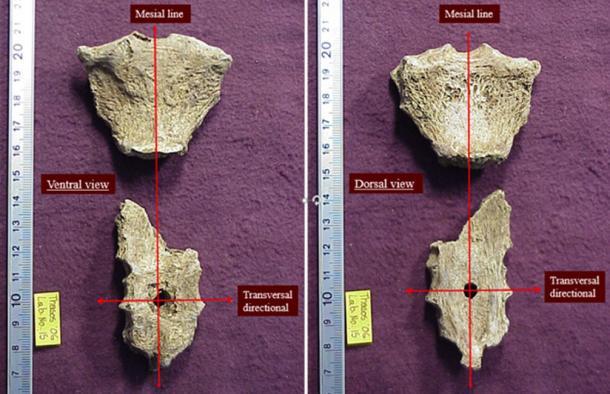 Esternón de un hombre helenístico del período que muestra la herida de puñalada. (Anagnostis Agelarakis / Adelphi University)