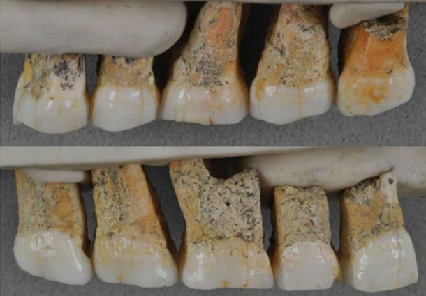 Dientes de Homo luzonensis encontrados - evidencia de la nueva especie humana. (Florent Détroit / © Callao Cave Archeology Project)