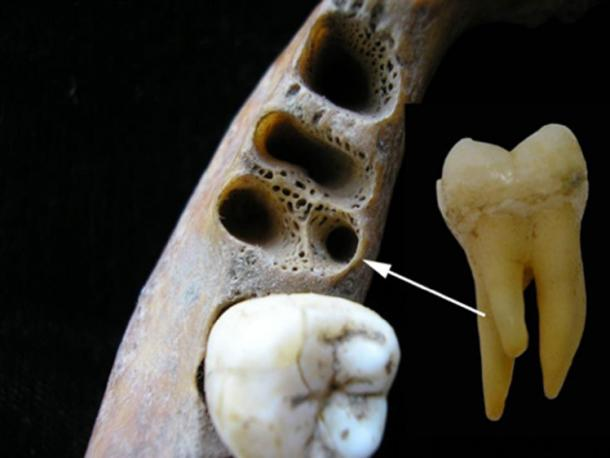 La anomalía molar inferior de tres raíces en un individuo asiático reciente. Izquierda: dientes que muestran la posición de la raíz accesoria; derecha: primer diente molar inferior de tres raíces. (Christine Lee)
