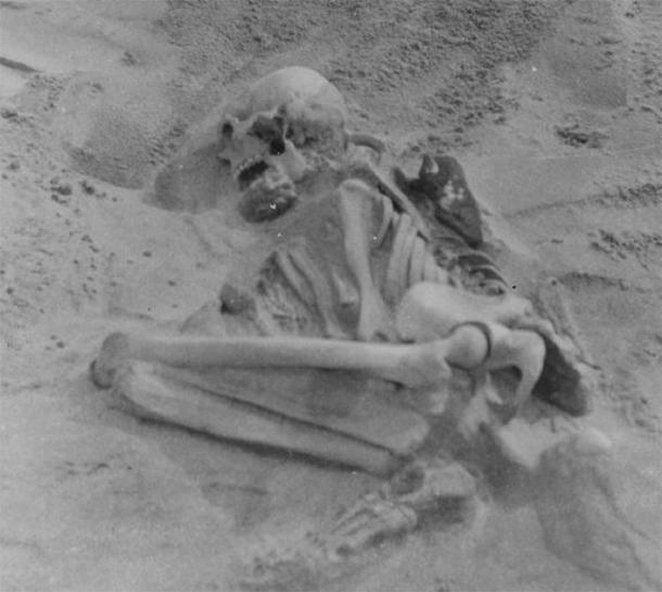 El esqueleto de Tiree de 5.000 años también fue enterrado en posición fetal. (The Hunterian)
