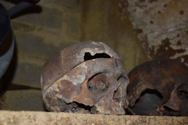 Uno de los cráneos de Charnel House en Rothwell, que muestra múltiples fracturas, así como evidencia de anatomización, probablemente de una autopsia. Crédito: The Rothwell Charnel Chapel Project / Universidad de Sheffield.