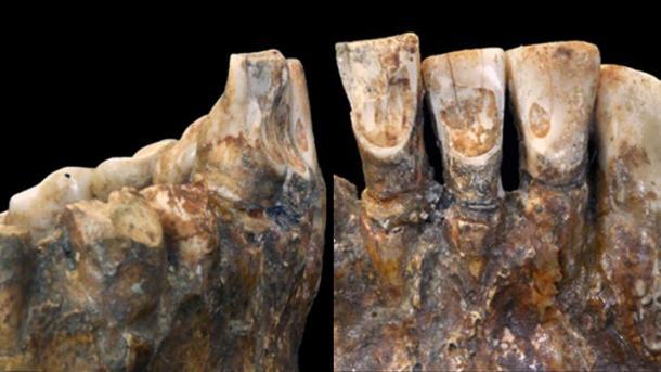 """Willman dice que los restos de 12,000 años de antigüedad tienen un """"patrón muy específico de desgaste dental"""" (American Journal of Physical Anthropology)."""