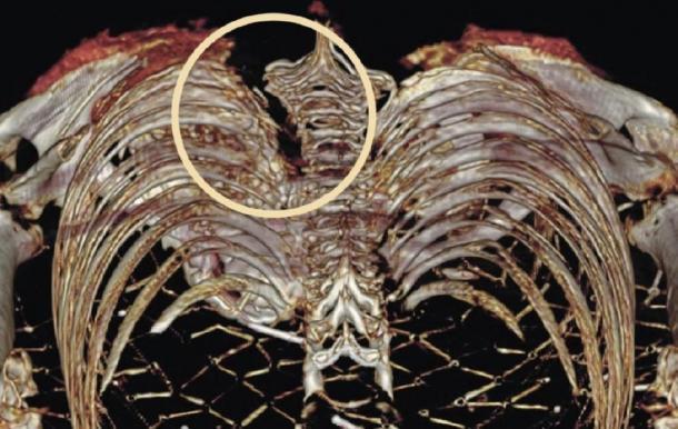 Radiografía que muestra una herida por arma blanca de la momia egipcia de Irlanda Takabuti. (R.D. Loynes / La Universidad de Manchester)