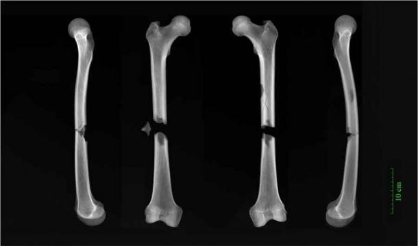 Radiografías de fracturas de mariposa en ambos fémures de un macho adulto enterrado en el convento agustino. (Universidad de Cambridge)