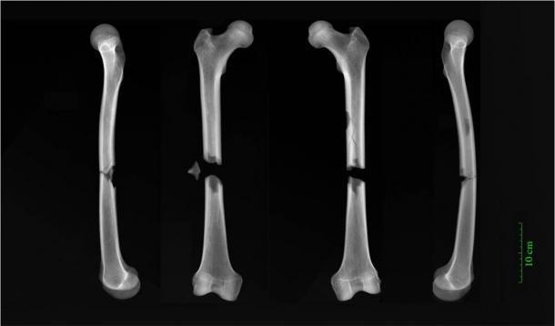 Radiografías de fracturas de mariposa en ambos fémures de un macho adulto enterrado en el convento agustino de la Cambridge medieval. (Dra. Jenna Dittmar / Universidad de Cambridge)