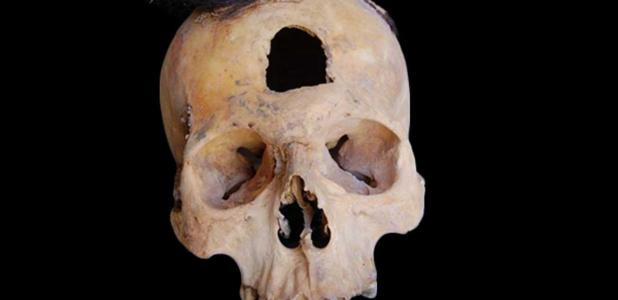 Portada - Una de las seis cabezas trofeo descubiertas en las 27 fosas funerarias. Fuente: María Cecilia Lozada
