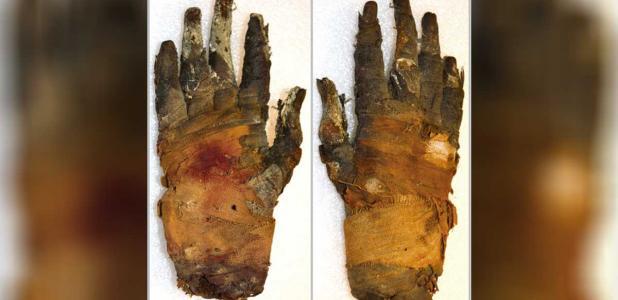 Portada - Fotografía de la mano humana momificada de un hombre del antiguo Egipto recientemente escaneada en Suecia. A la izquierda la palma, a la derecha el dorso. Fuente: Sociedad Radiológica de Norteamérica / Radiology