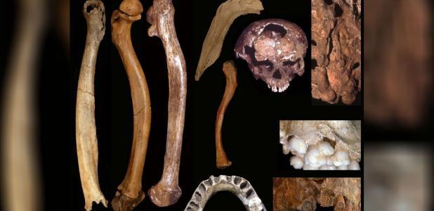 Portada - Ejemplos de malformaciones óseas en individuos del Pleistoceno. A la izquierda de la fotografía, de izquierda a derecha, los fémures deformes de Tianyuan 1, Sunghir 3 y Dolní V stonice 15. En el centro de la fotografía, de arriba a abajo: mandíbula con reborde de Palomas 23, laguna craneal de Rochereil 3, larga clavícula de Sunghir 1 y agenesia de los incisivos de Malarnaud 1. Derecha de la fotografía, de arriba a abajo: hiato sacro de Shanidar 1, poligénesis de Pataud 1 y paladar hendido de Dolní