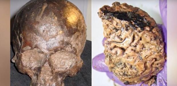 cráneo y cerebro de Heslington.