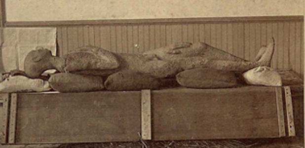 """El Solid Muldoon fue supuestamente un """"cuerpo humano petrificado"""" prehistórico desenterrado en 1877. Fuente: dominio público"""