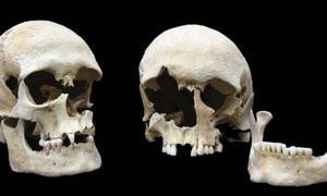 Portada - Cráneos de dos víctimas de la peste enterradas juntas en una tumba del cementerio de Altenerding, cercano a Munich, Alemania. (Fotografía: Colección Estatal de Antropología y Paleoanatomía de Munich)