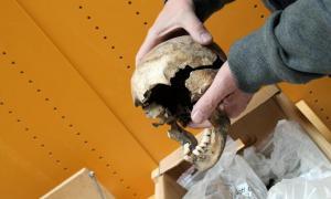 Portada-Cráneo de una joven que padecía sífilis; habría sido una buena candidata al tratamiento con mercurio de la época medieval. (Birgitte Svennevig/SDU)
