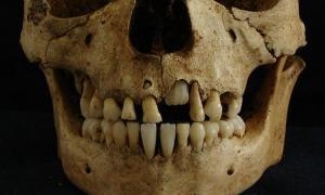 Portada-Cráneo de un niño de una edad aproximada de siete años hallado en un cementerio de la antigua Roma y analizado por las doctoras Killgrove y Montgomery. Fotografía: Kristina Killgrove