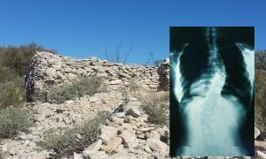 Portada - Ruinas de un asentamiento Hohokam en la cima de Indian Mesa (Public Domain). Detalle: Radiografía de un individuo afectado de escoliosis (Public Domain).