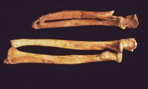 Portada-huesos-Brazo-Holebrok-Mano-Amputada-siglo-XIV-ataque-multitud.jpg