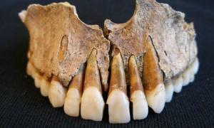 Portada-Fragmento del maxilar superior de uno de los esqueletos hallados en el más antiguo cementerio islámico medieval de España, descubierto hace algunos años en Pamplona. (Fotografía: EFE/DN)