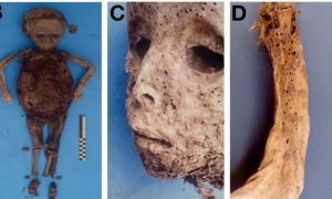 Portada - (B) el cuerpo momificado del niño antes de la autopsia, (C) marcas de viruela en el rostro y (D) la erupción se hace evidente asimismo en el brazo. Fuente: Patterson Ross, et al.