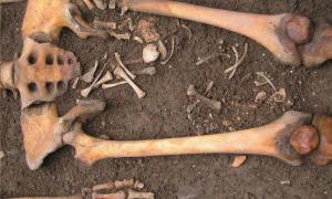 Portada - Tumba medieval con los restos de una mujer y un feto hallados en Bolonia, Italia. Pasini et al. 2018 / World Neurosurgery